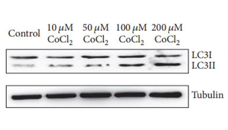 Western blot, C2C12 cells, MAP1LC3B antibody (A7198), 1:10000 dilution, IHC Validated