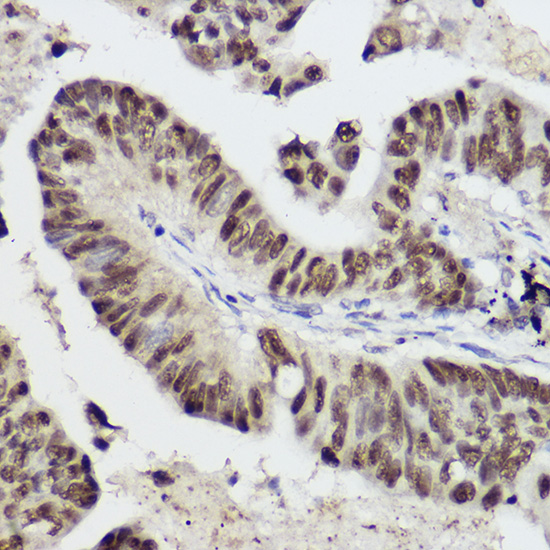 ABclonal:Immunohistochemistry - STAT1 Rabbit pAb (A0027) }