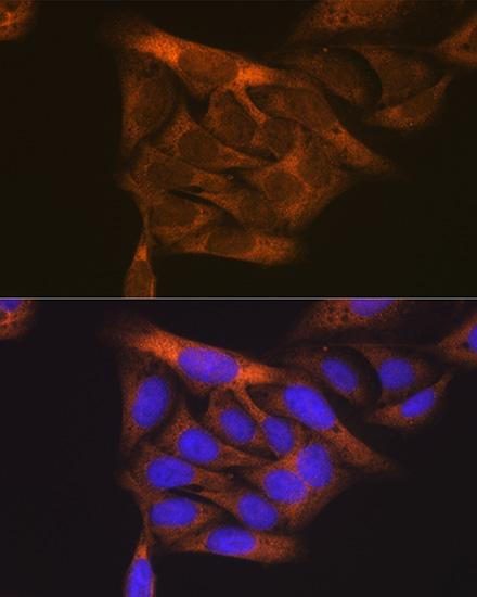 ABclonal:Immunofluorescence - VEGF Receptor 1 Rabbit pAb (A0058) }