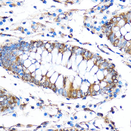 ABclonal:Immunohistochemistry - FoxO3a Rabbit pAb (A0102) }