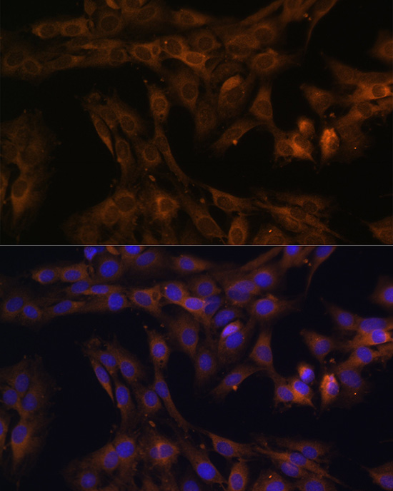 ABclonal:Immunofluorescence - FoxO3a Rabbit pAb (A0102) }