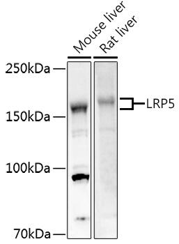ABclonal:Western blot - LRP5 Rabbit pAb (A0130) }
