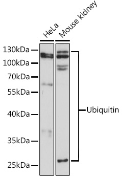 ABclonal:Western blot - Ubiquitin Rabbit pAb (A0162) }