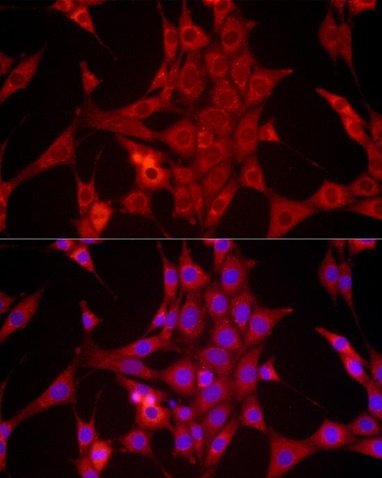 BCL2 Polyclonal Antibody