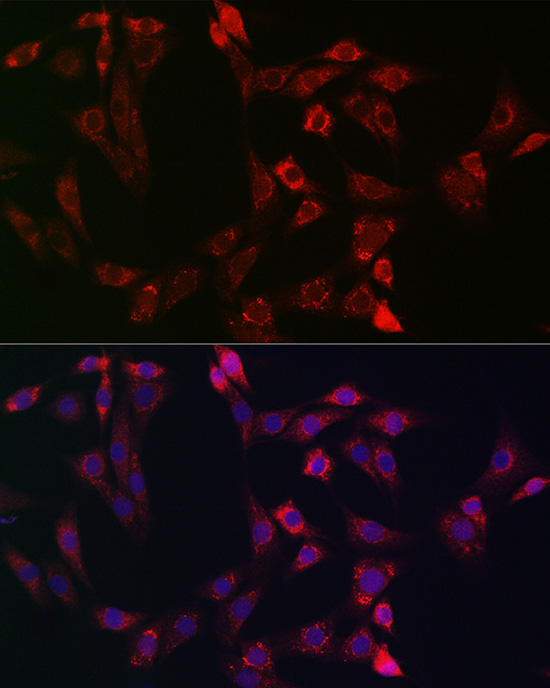 ABclonal:Immunofluorescence - BID Rabbit pAb (A0210)