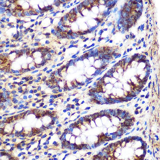ABclonal:Immunohistochemistry - FGF2 Rabbit pAb (A0235) }