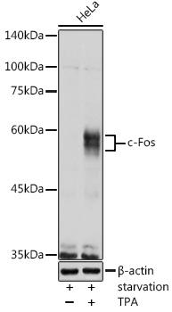ABclonal:Western blot - c-Fos Rabbit pAb (A0236) }