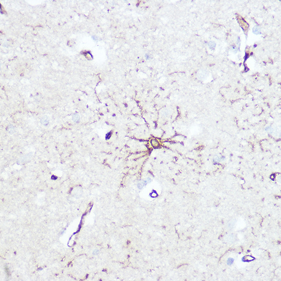 ABclonal:Immunohistochemistry - GFAP Rabbit pAb (A0237) }