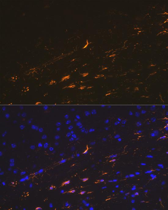 ABclonal:Immunofluorescence - GFAP Rabbit pAb (A0237) }