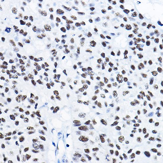 ABclonal:Immunohistochemistry - [KO Validated] HDAC1 Rabbit pAb (A0238)