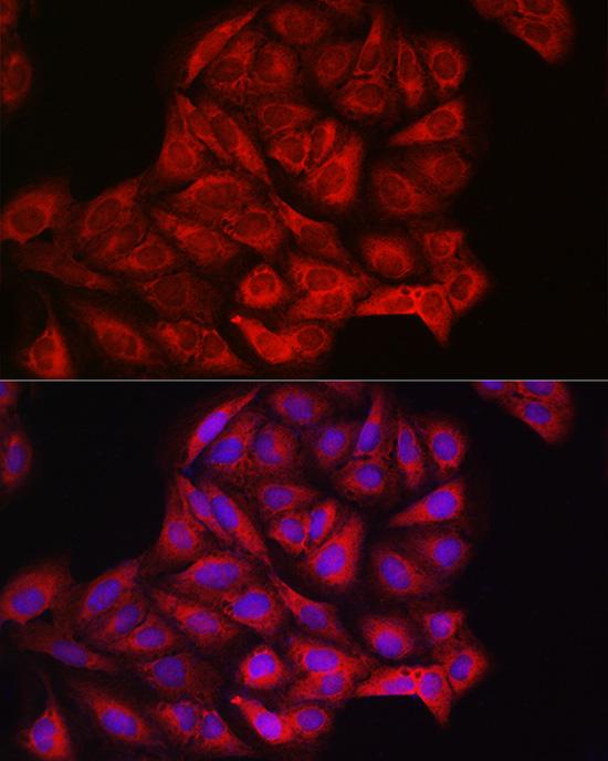 PIK3CA Polyclonal Antibody