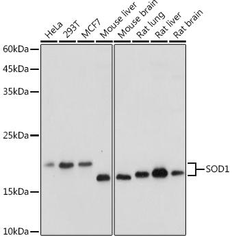 ABclonal:Western blot - SOD1 Rabbit pAb (A0274) }