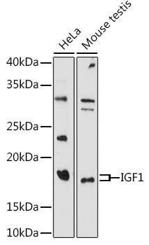 ABclonal:Western blot - IGF1 Rabbit pAb (A0303) }