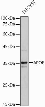 ABclonal:Western blot - APOE Polyclonal Antibody (A0304) }