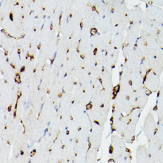 ABclonal:Immunohistochemistry - APOE Polyclonal Antibody (A0304) }
