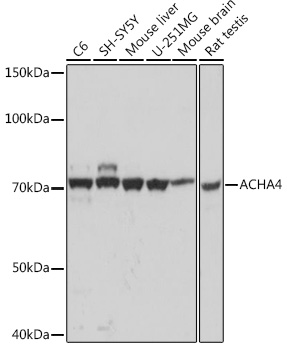ABclonal:Western blot - ACHA4 Rabbit mAb (A0350) }