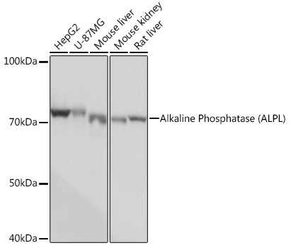 ABclonal:Western blot - Alkaline Phosphatase (ALPL) Rabbit mAb (A0514) }