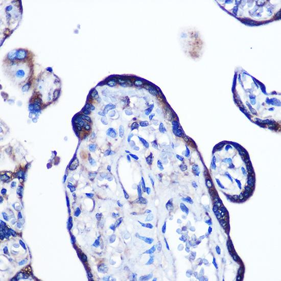 ABclonal:Immunohistochemistry - Alkaline Phosphatase (ALPL) Rabbit mAb (A0514) }