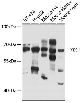 ABclonal:Western blot - YES1 Rabbit pAb (A0628) }