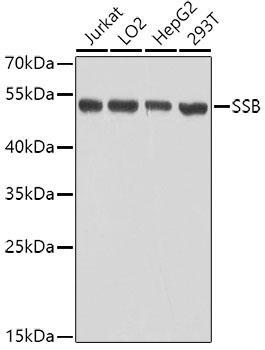 ABclonal:Western blot - SSB Rabbit pAb (A0630) }