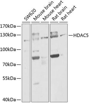 ABclonal:Western blot - HDAC5 Rabbit pAb (A0632) }
