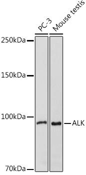 ABclonal:Western blot - ALK Rabbit pAb (A0766) }