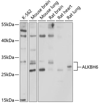 ABclonal:Western blot - ALKBH6 Rabbit pAb (A10004) }