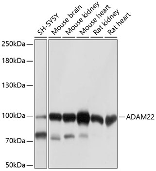ABclonal:Western blot - ADAM22 Rabbit pAb (A10030) }
