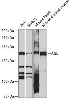 ABclonal:Western blot - AGL Rabbit pAb (A10051) }