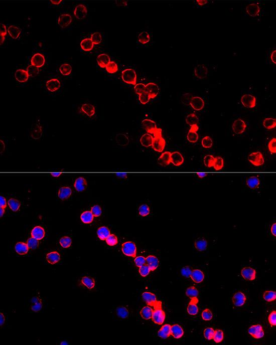 ABclonal:Immunofluorescence - Adenosine Deaminase (ADA) Rabbit pAb (A1019) }