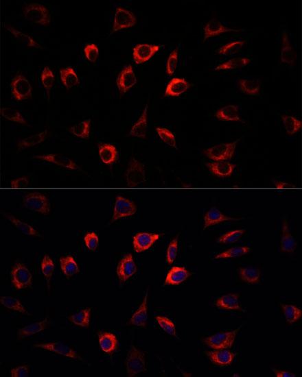 SGK1 Polyclonal Antibody
