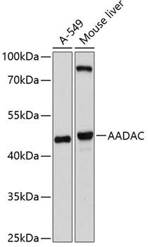 ABclonal:Western blot - AADAC Rabbit pAb (A10365) }