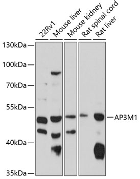 ABclonal:Western blot - AP3M1 Rabbit pAb (A10410) }