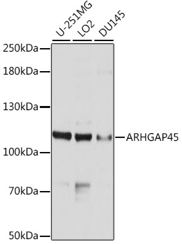 ABclonal:Western blot - ARHGAP45 Polyclonal Antibody (A10454) }