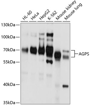 ABclonal:Western blot - AGPS Polyclonal Antibody (A10484) }