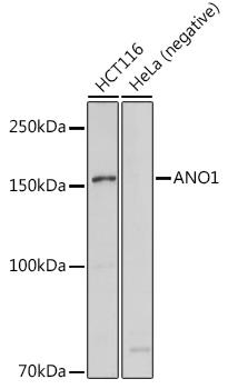 ABclonal:Western blot - ANO1 Rabbit pAb (A10498) }