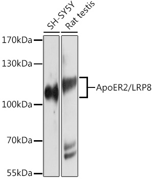 ABclonal:Western blot - ApoER2/LRP8 Rabbit pAb (A10517) }