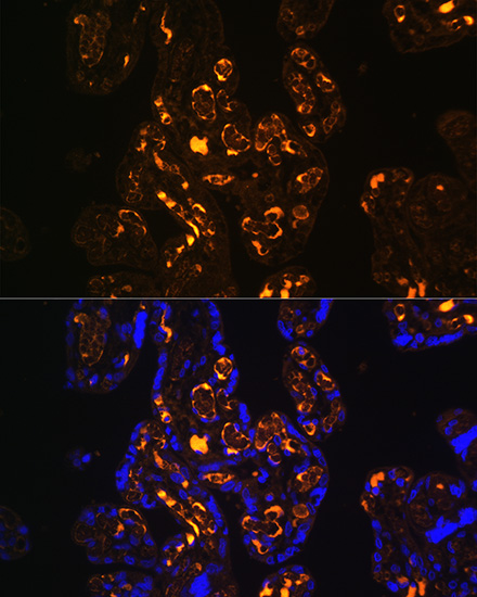 ABclonal:Immunofluorescence - ApoER2/LRP8 Rabbit pAb (A10517) }