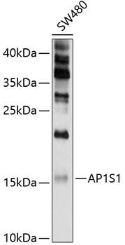 ABclonal:Western blot - AP1S1 Polyclonal Antibody (A10558) }