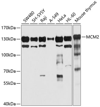 ABclonal:Western blot - MCM2 Polyclonal Antibody (A1056) }