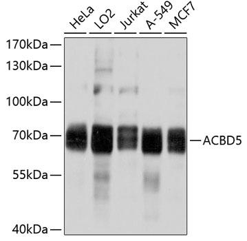 ABclonal:Western blot - ACBD5 Polyclonal Antibody (A10595) }