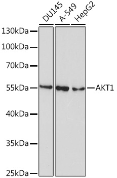 ABclonal:Western blot - AKT1 Mouse mAb (A10605) }