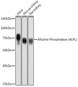 ABclonal:Western blot - Alkaline Phosphatase (ALPL) Rabbit pAb (A1080) }