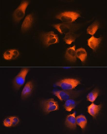 ABclonal:Immunofluorescence - AP2M1 Rabbit mAb (A11070) }