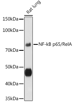 ABclonal:Western blot - [KO Validated] RELA Polyclonal Antibody (A11201)