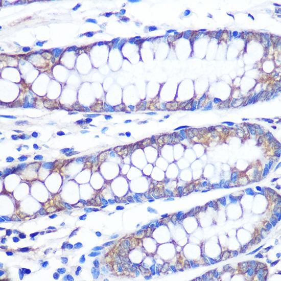ABclonal:Immunohistochemistry - [KO Validated] FGF2 Rabbit mAb (A11488) }