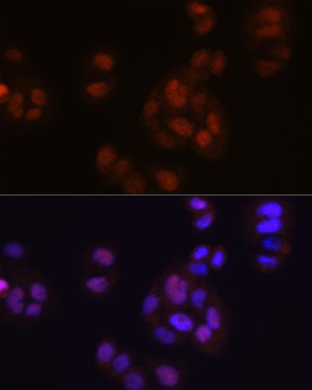 ABclonal:Immunofluorescence - [KO Validated] FGF2 Rabbit mAb (A11488) }