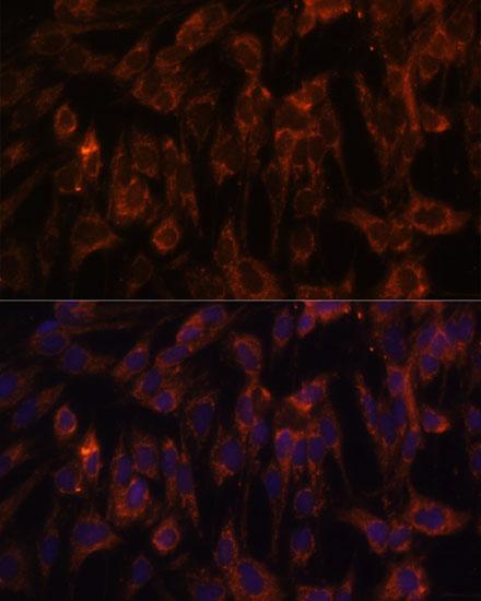TLR3 Polyclonal Antibody