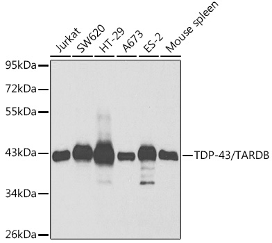 TDP-43/TARDB Rabbit pAb