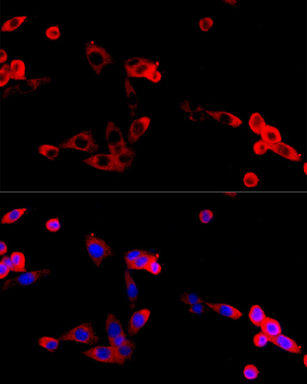 ABclonal:Immunofluorescence - FGFR2 Polyclonal Antibody (A12436) }